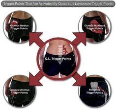 The Quadratus Lumborum Trigger Points: Masters of Low Back Pain. My journey researching my back injury.