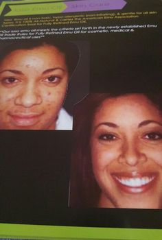 Get clear skin in one month. ORDER today. Www.totallifechanges.com/5287031