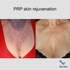 PRP - platelet rich plasma skin rejuvenation. Powerful growth factors of your own blood restore skin elasticity, tone and texture   #revitta #manhattan #nyc  212.535.1201   #prp #beauty #cosmetic ##gorgeous #fashion #happy #beautiful #style #skin #wrinkles #vampirelift #newyork #newyorkers #newyorkbeauty #beautytreatment #decollete #chest #microneedling #skincare #antiaging #medspa #aesthetics Facial Aesthetics, New York Beauty, Growth Factor, Cosmetic Procedures, Restoration, Manhattan Nyc, Skin Elasticity, Skin Care