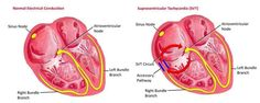 Premature Atrial Contractions (PAC's) While the sinoatrial node typically regulates the heartbeat during normal sinus rhythm, PACs occur when another region of the atria depolarizes before the sinoatrial node and thus triggers a premature heartbeat. Wolff Parkinson White Syndrome, Acute Respiratory Failure, Ekg Interpretation, Ventricular Tachycardia, Rapid Heart Beat, Nurse Jackie, Autonomic Nervous System, Hearts