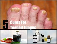 Home Remedies - Natural Remedy - http://www.natural-homeremedies.org/blog/top-5-natural-cures-for-toenail-fungus/