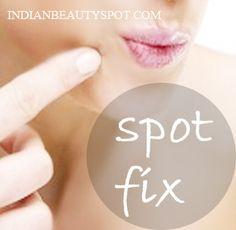 Spot Fix - Home remedies for spots / freckles - ♥ IndianBeautySpot.Com ♥