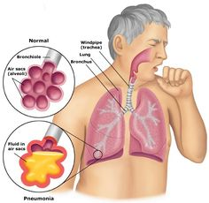 What is pneumonia and what are the symptoms of pneumonia?