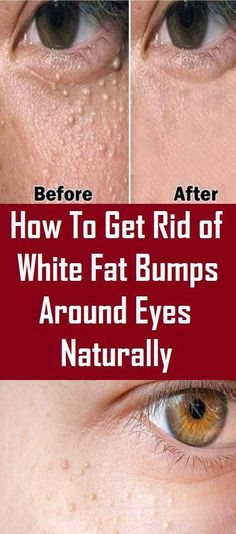 Simple methods to Get rid of Saggy Skin On Stomach Tighten Stomach, Tighten Loose Skin, How To Slim Down, How To Get Rid, Skin Firming Lotion, Skin Tightening Cream, Skin Bumps, Extra Skin, Personal Development