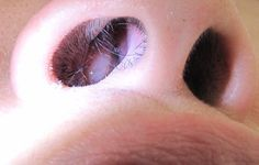 Symptoms of Nasal Sinus Polyps - Nasal Polyps Remedy   Nasal Polyps Remedy