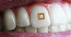 Get ready for another step towards our dystopian future as scientists have invented a way to track and monitor what we eat. This 2mm x 2mm wireless sensor can be mounted on to teeth and can track e…