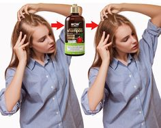 Saw Palmetto Extract Saw palmetto works to stop hair loss by blocking DHT, the hormone responsible for hair loss. It is also rich in fatty oils that help stimulate hair growth. Hair Remedies For Growth, Hair Growth Treatment, Hair Treatments, Oil For Hair Loss, Stop Hair Loss, New Hair Growth, Hair Growth Tips, Apple Cider Vinegar For Hair, Shampoo For Thinning Hair