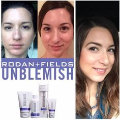 Blackheads On Cheeks, Rodan And Fields Redefine, Organic Vitamins, Cosmetics Ingredients, Acne Solutions, Spot Treatment, Good Skin, Healthy Skin, Skin Care Tips
