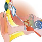 How does a cochlear implant work? « Cochlear Implant Online