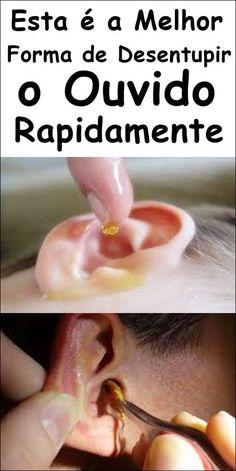 10 Remédios Caseiros Para Desentupir o Ouvido! #comodesentupiroouvido #desentupiroouvido #dicaparadesentupiroouvido #dicasparadesentupiroouvido #receitaparadesentupiroouvido #receitasparadesentupiroouvido #remédiocaseiroparadesentupiroouvido