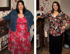 Before After Gastric-Sleeve Sleeve Gastrectomy Before and After ...