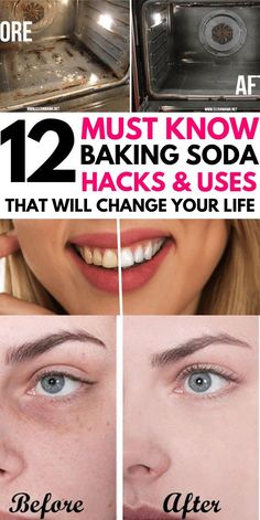 12 Genius Baking Soda Cleaning Hacks You NEED TO TRY. Clean everything from your bathroom, kitchen, Baking Soda Water, Baking Soda Cleaning, Baking Soda Vinegar, Baking Soda Shampoo, Cider Vinegar, Baking Soda Beauty Uses, Baking Soda Uses, Dog Shampoo, Hair Shampoo
