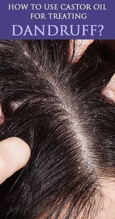 Castor oil is rich in antibacterial & antifungal properties & will fight dandruff on your scalp. Massage using this oil to get rid of dandruff. Castor Oil For Dandruff, Hair Dandruff, Dandruff Remedy, Scalp Scrub, Dry Scalp, How To Treat Dandruff, Treating Dandruff, Personal Beauty Routine