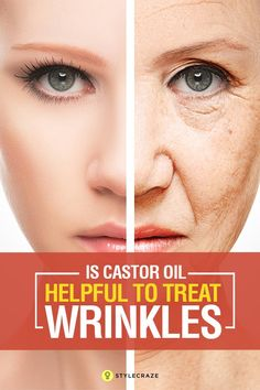 Is Castor Oil Helpful To Treat Wrinkles? Castor oil smooths out your wrinkles and makes them disappear. It protects your skin, repairs it, and yes, prevents premature aging as well. To know how to use castor oil to remove wrinkles, read on. Coconut Oil Facial, Coconut Oil For Acne, Face Wrinkles, Prevent Wrinkles, Castor Oil For Face, Castor Oil Acne, Uses For Castor Oil, Castor Oil For Hair Growth, Organic Castor Oil