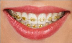 Gold Braces: Similar to traditional metal braces, but they are coated in gold.