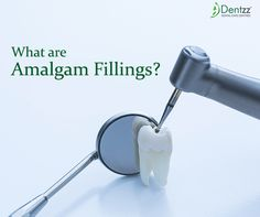 Dental amalgam, most commonly known as silver fillings is one of the oldest methods used in dentistry. http://dentzz.co.nz/2016/03/dentzz-dental-amalgam-a-health-risk/