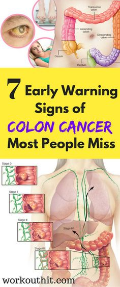 Colon cancer or colorectal cancer starts in the large intestine or in the rectum. It is treatable when caught early, but it's still the third most common type of cancer in men and women in the United States.