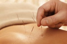 What is Acupuncture: Acupressure: Acupuncture Benefits: Acupuncture Treatment: Acupuncture for Anxiety: Acupuncture for Pain Relief: Acupuncture for Migraine: Acupuncture for Weight-loss: Acupuncture for Fertility: Herbal Medicine: Acupuncture Fertility, Acupuncture Benefits, Acupuncture Points, Acupressure Points, Alternative Therapies, Alternative Medicine, Alternative Treatments, Migraine, Sciatica Pain Relief