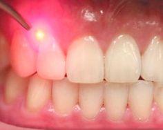 Laser de Hélio-Neon são usados na prevenção e tratamento da mucosite causada por quimio e radioterapia.