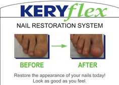Keryflex is an innovative way too attractive nails. Do you have discolored, brittle and splitting nails, onychomycosis? If the answer is yes, then KeryFlex might help you. Call Richmond Foot & Ankle Clinic at (937)228-3668 and make an appointment.Now accepting all insurances, same day appointments available.