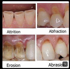 Sep 2019 - Difference between dental erosion, enamel attrition, abfraction and tooth abrasion Dental Assistant Study, Dental Hygiene Student, Dental Hygienist, Dental Implants, Dental Procedures, Dental Surgery, Dental World, Dental Life, Dental Health