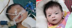 Little Levi was born with complete transposition of the great arteries, PDA, ASD, and VSD. He had surgery and fought back against several complications. He is now continuing to heal at the Anhui Healing Home, and we are so glad to see his beautiful eyes!