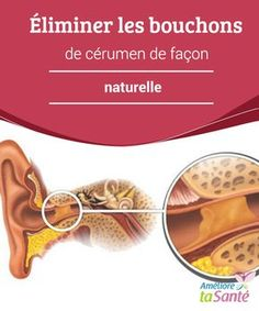 Éliminer les #bouchons de cérumen de façon naturelle   Vous souffrez souvent de bouchons de #cérumen aux #oreilles ? Venez découvrir nos astuces simples et #naturelles pour vous en débarrasser !