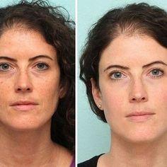 Jak přírodně vyléčit povadlá oční víčka: Výsledky jsou úžasné! - Chránit své zdraví