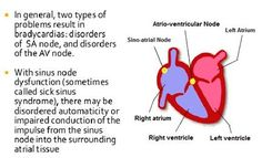 27 Best Sick Sinus Syndrome Images In 2017 Heart Rhythms