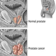 Prostate Cancer Home Remedies, Natural Treatments & Cure - Quick Tips