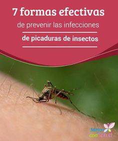 7 formas efectivas de prevenir las infecciones de picaduras de insectos   te queremos hablar de cómo prevenir las picaduras de insectos que te pueden poner en riesgo por infecciones o bacterias que pueden enfermarte