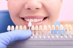 Tooth colored fillings can be used on either front or back teeth. They are a good choice for people who prefer that their fillings look more natural.