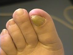 Yellow Toe Nails