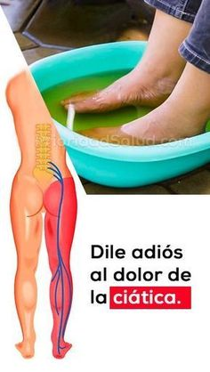 Di Adios A Los Dolores Del Nervio Ciatic - Health Fitness Health And Beauty, Health And Wellness, Health Fitness, Health Remedies, Home Remedies, Reflexology, Natural Medicine, Natural Cures, Back Pain