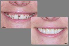 Bonding: Permanent and quick option for teeth gaps. Teeth Bonding, Dental Bonding, Space Between Teeth, Gap Teeth, Dental Cosmetics, Dental Procedures, White Smile, Natural Teeth Whitening, Cosmetic Dentistry