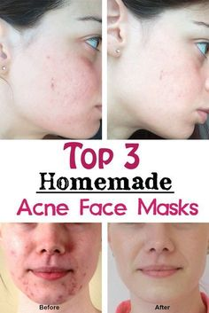5 Homemade Acne Face Masks With All Natural Ingredients
