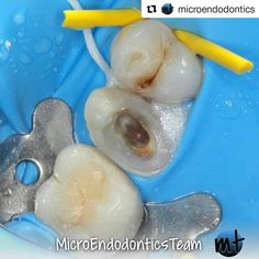 #rubberdamology @microendodontics・・・Pre-endodontic restoration for isolation-up