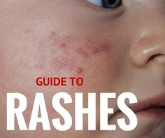 Does your child suffer from a rash? Maybe you're unsure of the type or even what do to? This article will help educate you about common rashes on kids.