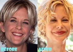Meg Ryan Plastic Surgery Before And After Shocking Facelift - - Botox Meg Ryan, Bad Plastic Surgeries, Plastic Surgery Gone Wrong, Celebrities Before And After, Celebrities Then And Now, Botox Brow Lift, Dental Cosmetics, Lip Injections, Tummy Tucks