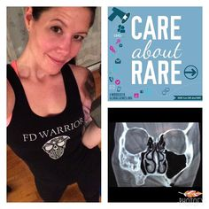 Hey Friends! Did you know that February 29th is Rare Disease Day?  It is! I'm wearing my FD Warrior shirt to raise awareness for the rare bone disease I have called Fibrous Dysplasia.  Fibrous dysplasia (FD) is a bone disease characterized by areas of abnormal growth or lesions in one several or many bones. FD can occur in any bone and results in formation of bone that is weak and prone to expansion. As a result most complications result from fracture deformity functional impairment and…