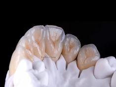 #lingual #emaxpress #emaxceram #dentaltech #onebake #anteriorteeth #simplestyle #restorativedentistry #chijidentalartworkshop