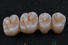 Smile Dental, Dental Teeth, Dental Anatomy, Dental Technician, Teeth Shape, Dental Bridge, Dental Art, Dental Laboratory, Dentistry