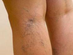 7 remèdes pour se débarrasser des petites varices noté 3.4 - 82 votes Les varicosités sont de petites veines superficielles anormalement dilatées qui sont visibles à travers la peau. Plus ou moins fines, elles traduisent une fragilité de la circulation veineuse. On les retrouve au niveau des membres inférieurs, et très souvent sur le visage où...
