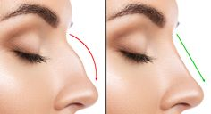 Revision Rhinoplasty for perfect nose surgery by Renowned Plastic Surgeon, Now Look Perfect Cost, For Appointment, Call or WhatsApp Sinus Surgery, Rhinoplasty Surgery, Nose Surgery, After Surgery, Meghan Markle Nose Job, Nose Reshaping, Nose Shapes, Operation, Cosmetic Procedures