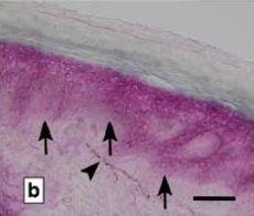 Actu santé : FIBROMYALGIE: Une hypersensibilité centrale ou des petites fibres nerveuses?