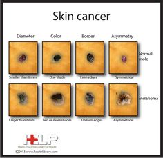 Skin Cancer [Photo Infographic] : good reference to have!