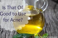 Is That Oil Good to Use for Acne? Great info including list on most oils and there Comedogenic Ratings. Natural Oils, Natural Skin Care, Natural Health, Healthy Beauty, Health And Beauty, Sensitive Acne Prone Skin, Diy Body Butter, Essential Oils For Skin, How To Get Rid Of Acne