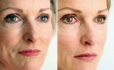 Employ These Two Face Aerobics Exercises To Remedy Eye Bags And To Dispose Of Under Eye Creases