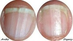 Mergulhar as pontas dos dedos em vinagre de maçã é um remédio muito eficaz para fortalecer as unhas quebradiças. Este remédio ajuda também a branquear as unhas amareladas das fumadoras ou as que amarelaram devido ao uso prolongado de vernizes de unhas muito escuros. anúncios Mas as suas unhas estão precisando de um tratamento fortalecedor …