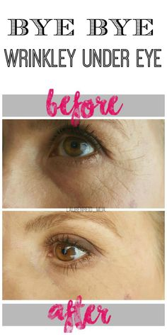 How to get rid of undereye wrinkles, fine lines, smile lines, dark circles, and bags. Click to learn more!